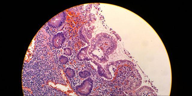 Lumia-1020-Microscope[1]